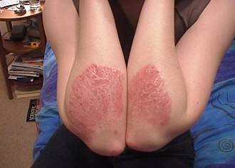 All About Psoriasis: What Does It Look Like, How To Control It, How Does It Affect Me? [And More]