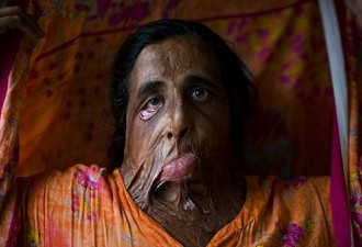 Continued Acid Attacks on Women Are Pulling Back South Asia: Need To Put An End